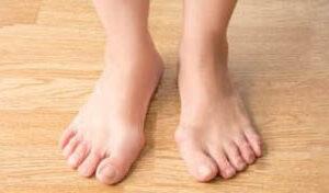 foot-deforminities
